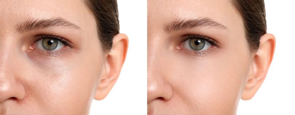 La dermabrasion du visage
