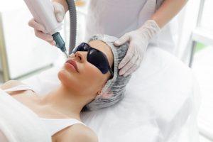 Epilation laser pour le visage