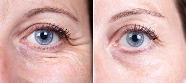 Chirurgie esthétique contour des yeux